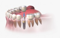 Dental Implants in Gurgaon | Cost of fixed tooth replacement in India