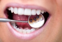 Best Dentist in Gurgaon   Top Dental Clinic in Gurgaon   Aspen Dental