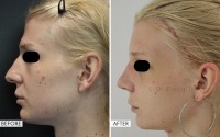 Facial Feminization Surgery Cost in USA, UK, and India