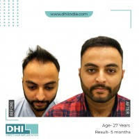 Get The Best Hair Transplant In Jaipur | DHI Jaipur