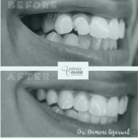 Smile Makeover in Lucknow - Treatment l Infinity Dental