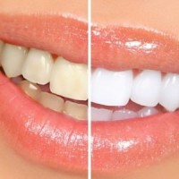 Best Dental Clinic in South Delhi | Best Dentist in South Delhi