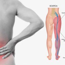 Best Ayurvedic Treatment For Sciatica Pain Treatment In Delhi