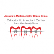 Dr. Chintan Agrawal | Best Orthodontists Doctor in Ahmedabad